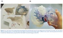 """Nou article publicat: """"3D Printing in Medicine for Preoperative Surgical Planning: A Review"""""""